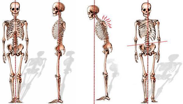 Adult-Spinal-Deformities